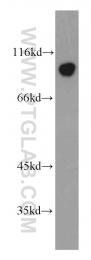 11558-1-AP - Wolframin / WFS1