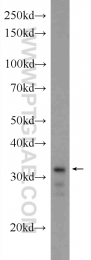 24168-1-AP - XBP1 / TREB5