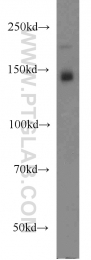 55156-1-AP - XDH