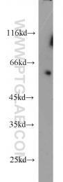 13148-1-AP - ZC3HC1