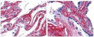 R1042B - Collagen type V