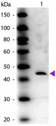 R1046PS - Adenosine deaminase