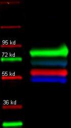 R1055PS - Alpha-1-antitrypsin