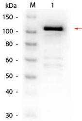 R1064BS - Beta-galactosidase tag