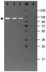 R1064FS - Beta-galactosidase tag