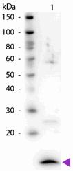 R1065PS - Beta-2-microglobulin