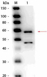 R1066HRPS - Bilirubin oxidase
