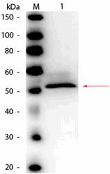 R1093HRPS - Hexokinase