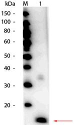 R1111HRPS - Superoxide Dismutase 1 / SOD1