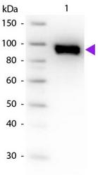 R1598PS - Plasminogen / PLG