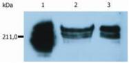 SM1115PP - CD45 / LCA