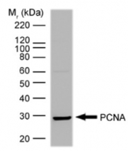 SM1421P - PCNA