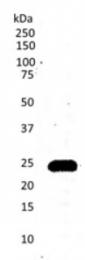 SM1754P - CD3