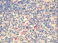 SM1825BS - CD282 / TLR2