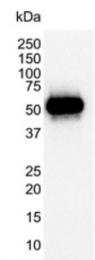 SM2137P - TP53 / p53