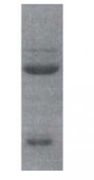 SM5035 - Mineralocorticoid receptor
