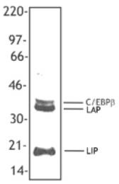 SM5053BT - CEBPB