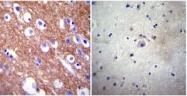 SM5057P - ATP2B4 / PMCA4