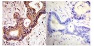 SM5062 - TER ATPase / VCP