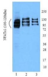 SM5081P - NFAT2 / NFATC