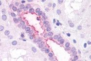 SP4020P - CD182 / IL8RB
