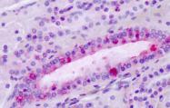 SP4363P - Latrophilin-3