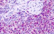 SP4614P - Tachykinin receptor 1 (TACR1)