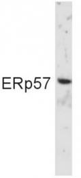 SP5391 - PDIA3
