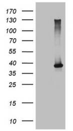 TA809536 - CD336