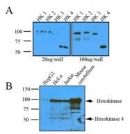 AM05641PU-N - Hexokinase