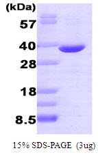 AR09146PU-L - AKR1B1 / ALDR1