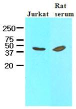 AM09058PU-N - Interleukin-12 beta / IL12B