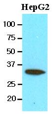 AM09091PU-N - Carbonyl reductase 3