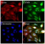 AM09355PU-N - Thymidylate synthase (TS)