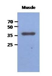 AM50022PU-N - FBP2