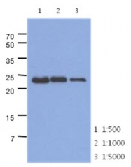 AM50025PU-N - Skeletal muscle Troponin I