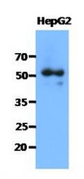 AM50039PU-N - Syntrophin-1 / SNTA1