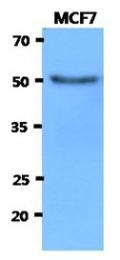 AM50044PU-N - Beta-hexosaminidase alpha / HEXA