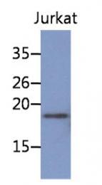 AM50052PU-N - NBL1