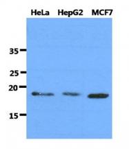 AM50072PU-N - DNAL1