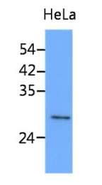 AM50076PU-N - Stomatin / STOM