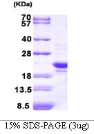 AR09187PU-L - Peroxiredoxin-2 / PRDX2