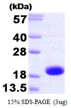 AR09213PU-L - Skeletal muscle Troponin C