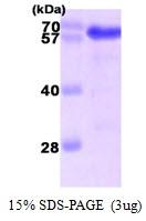 AR09218PU-L - USH1C  / Harmonin