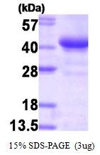 AR09230PU-L - Glycogenin-1 (GYG1)