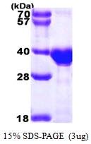 AR09235PU-L - Otubain-1 (OTUB1)