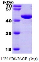 AR09236PU-L - Phosphoglycerate kinase 1 (PGK1)