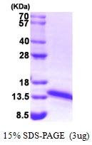 AR09240PU-L - Ferredoxin-1 (FDX1)