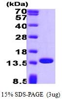 AR09259PU-L - Profilin-1 / PFN1