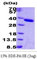 AR09273PU-L - Esterase D (ESD)